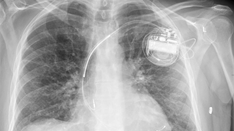 Medical implants vulnerable to cyber attacks, experts warn